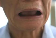全口牙齒拔除後會造成口腔哪些變化呢?